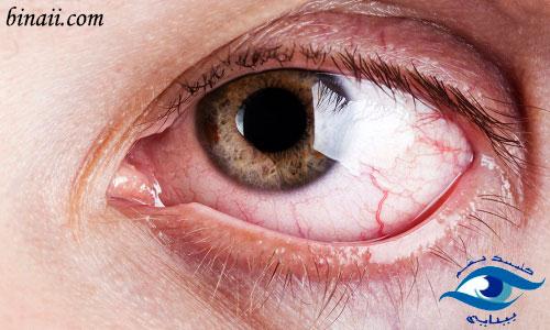 عوارض چشمی