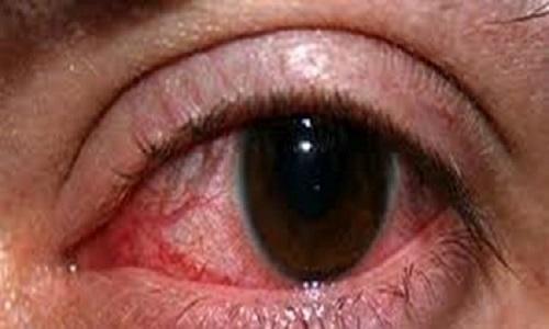 تراخم بیماری چشمی
